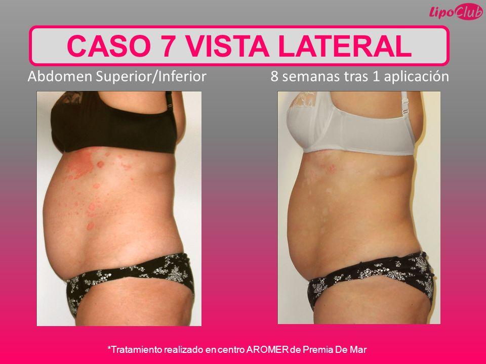 CASO 7 VISTA LATERAL Abdomen Superior/Inferior 8 semanas tras 1 aplicación *Tratamiento realizado en centro AROMER de Premia De Mar