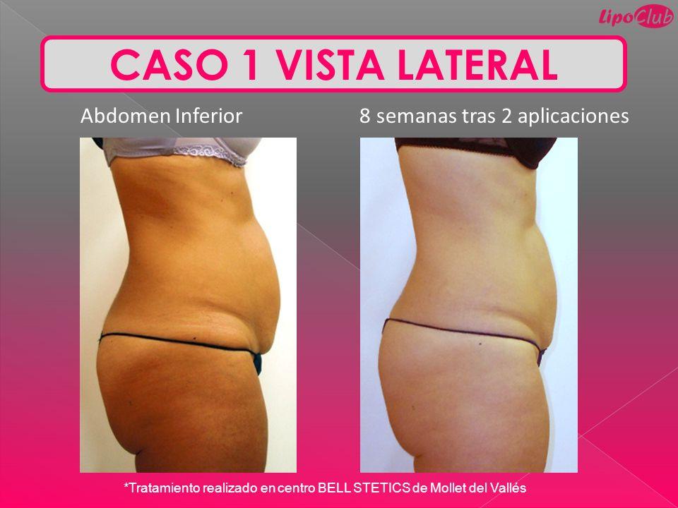 CASO 1 VISTA LATERAL Abdomen Inferior 8 semanas tras 2 aplicaciones *Tratamiento realizado en centro BELL STETICS de Mollet del Vallés