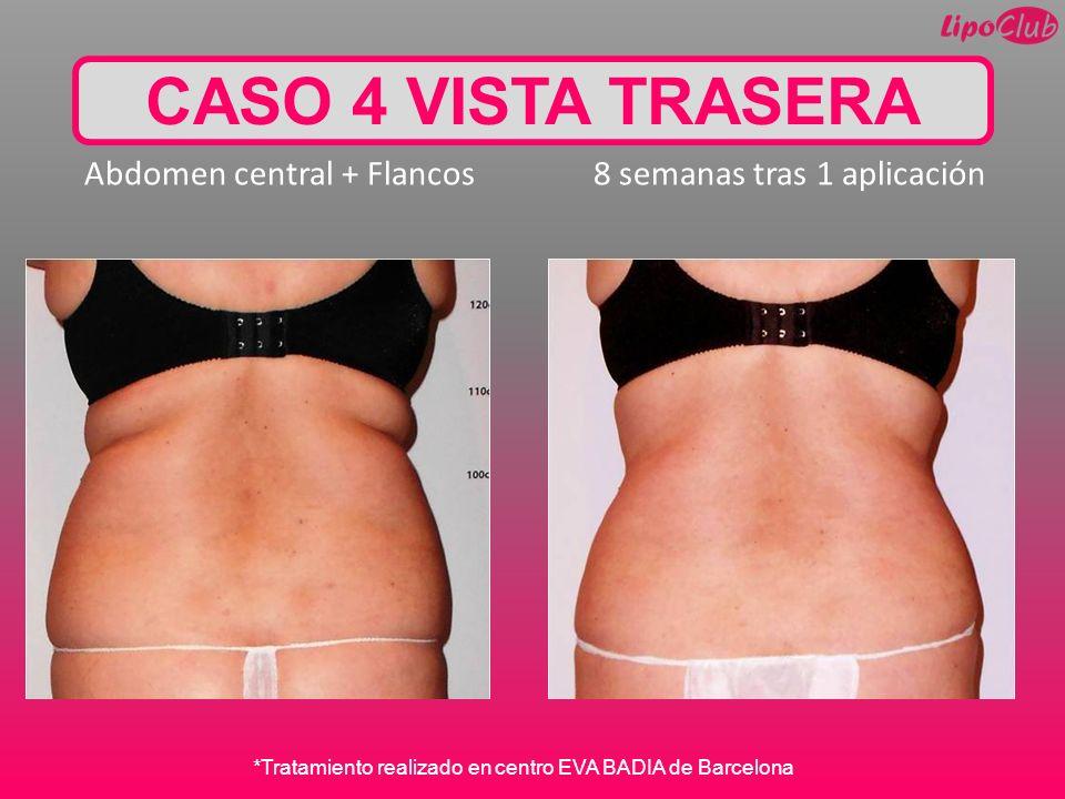 CASO 4 VISTA TRASERA Abdomen central + Flancos 8 semanas tras 1 aplicación *Tratamiento realizado en centro EVA BADIA de Barcelona