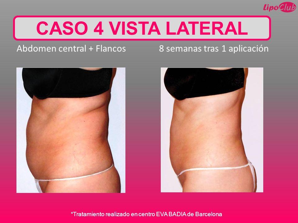 CASO 4 VISTA LATERAL Abdomen central + Flancos 8 semanas tras 1 aplicación *Tratamiento realizado en centro EVA BADIA de Barcelona