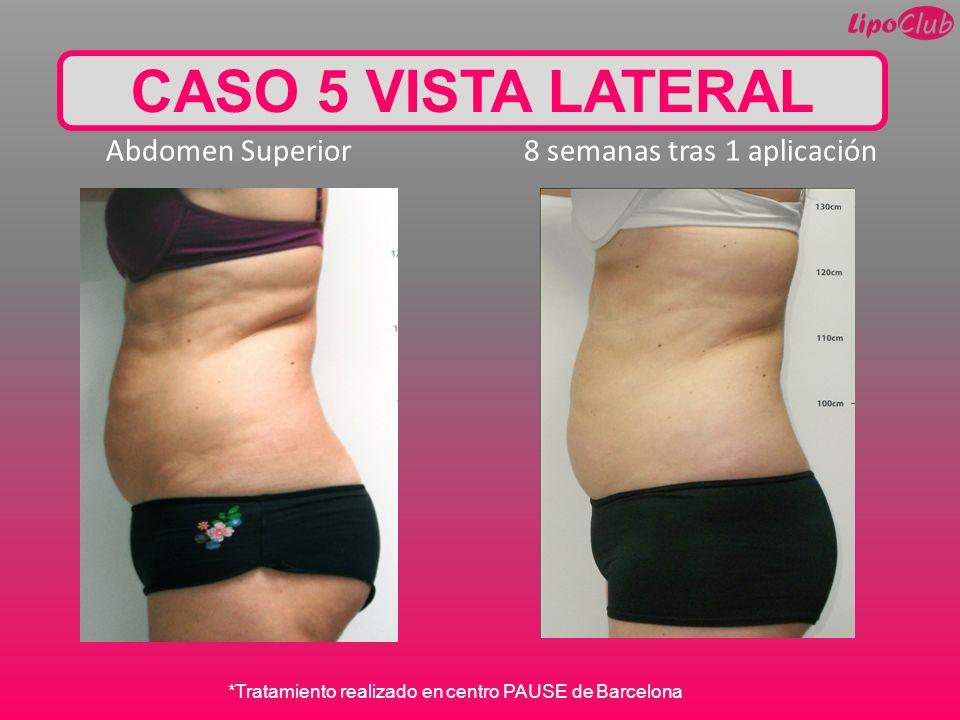 Abdomen Superior 8 semanas tras 1 aplicación CASO 5 VISTA LATERAL *Tratamiento realizado en centro PAUSE de Barcelona