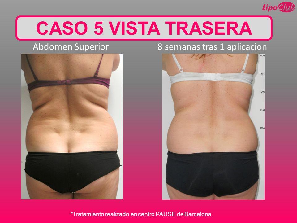 CASO 5 VISTA TRASERA Abdomen Superior 8 semanas tras 1 aplicacion *Tratamiento realizado en centro PAUSE de Barcelona