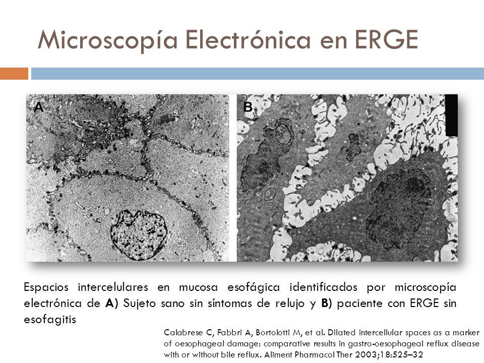 Microscopía Electrónica en ERGE Espacios intercelulares en mucosa esofágica identificados por microscopía electrónica de A) Sujeto sano sin síntomas de relujo y B) paciente con ERGE sin esofagitis Calabrese C, Fabbri A, Bortolotti M, et al.