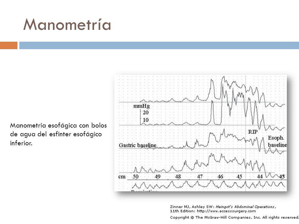 Manometría Manometría esofágica con bolos de agua del esfínter esofágico inferior.