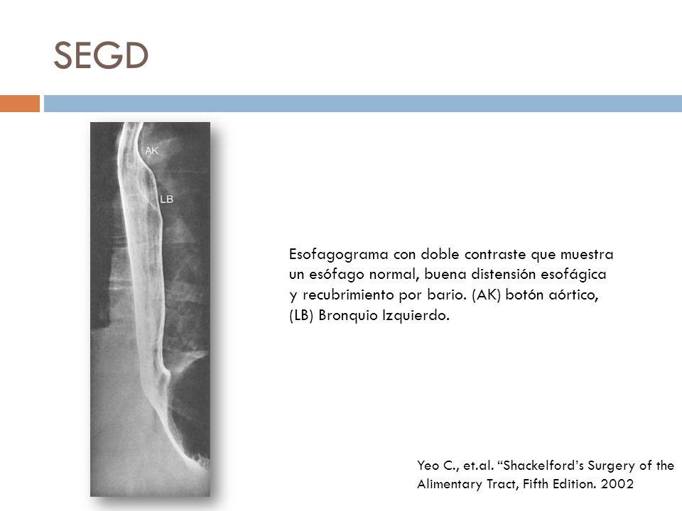 SEGD Esofagograma con doble contraste que muestra un esófago normal, buena distensión esofágica y recubrimiento por bario.