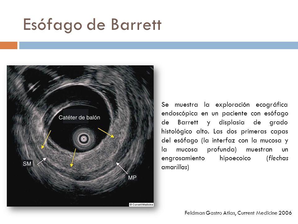 Esófago de Barrett Se muestra la exploración ecográfica endoscópica en un paciente con esófago de Barrett y displasia de grado histológico alto.