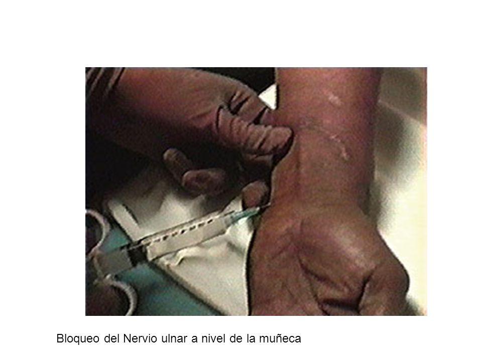 Nervio Facial (VII) Nervio Mixto.