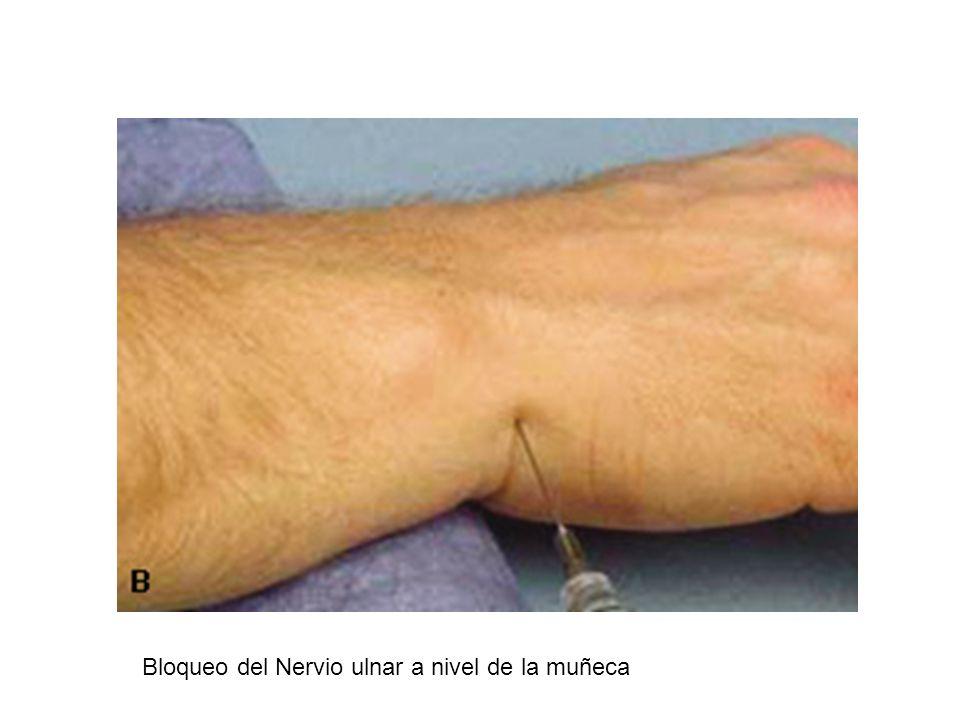 Bloqueo Nervio Obturador: Anestesia al musculo medial y relaja los musc aductores de la cadera Sale de la pelvis y entra al muslo por el agujero obturador y se localiza debajo de la rama pubica superior Con aguja 22g de 9 cm se incerta 2 cm lateral por 2 cm inferior al tubérculo del pubis hasta entrar por el agujero del obturador Se administra de 15 a 20 ml anest local Bloqueo del Nervio Cutaneo Femoral Lateral: Se emplea para procedimientos en la cara lateral del muslo.