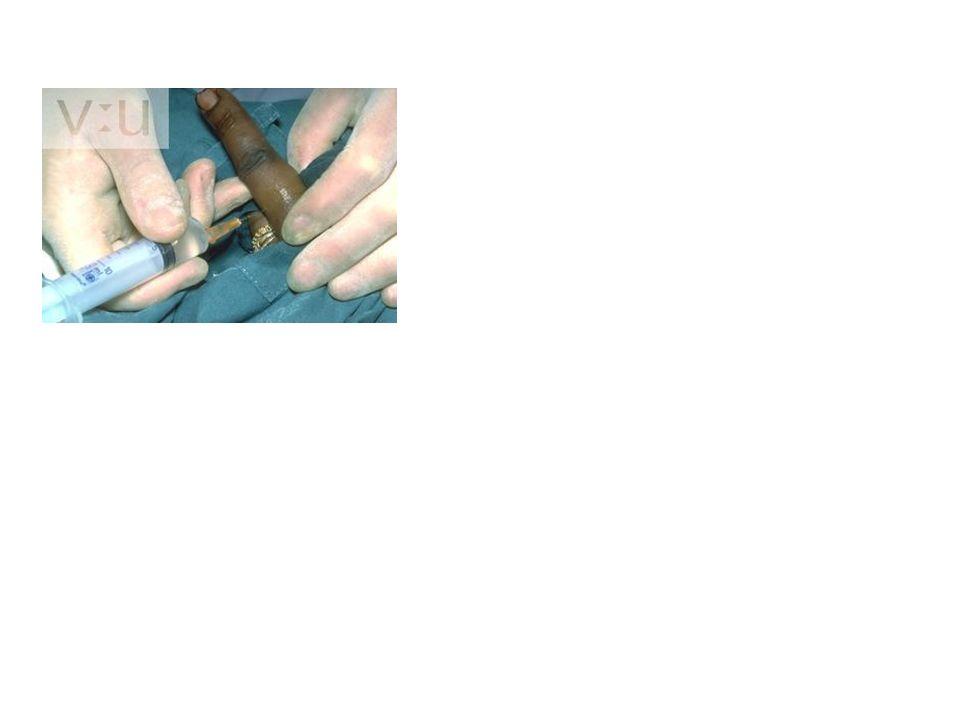 Bloqueo del tobillo Nervio Safeno (rama terminal femoral).