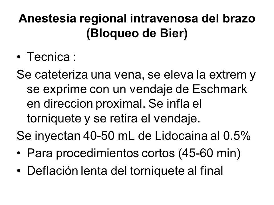 Anestesia regional intravenosa del brazo (Bloqueo de Bier) Tecnica : Se cateteriza una vena, se eleva la extrem y se exprime con un vendaje de Eschmar