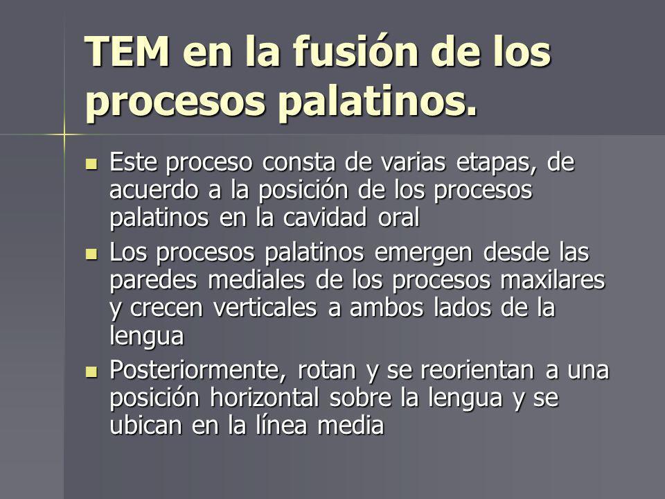 TEM en la fusión de los procesos palatinos. Este proceso consta de varias etapas, de acuerdo a la posición de los procesos palatinos en la cavidad ora