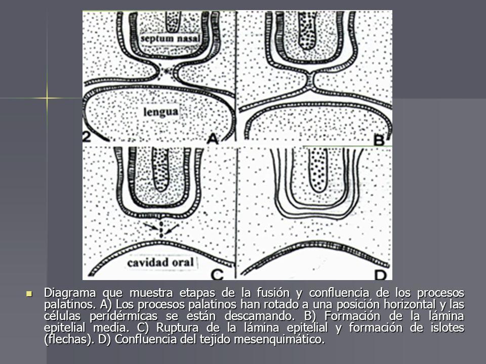 Diagrama que muestra etapas de la fusión y confluencia de los procesos palatinos. A) Los procesos palatinos han rotado a una posición horizontal y las