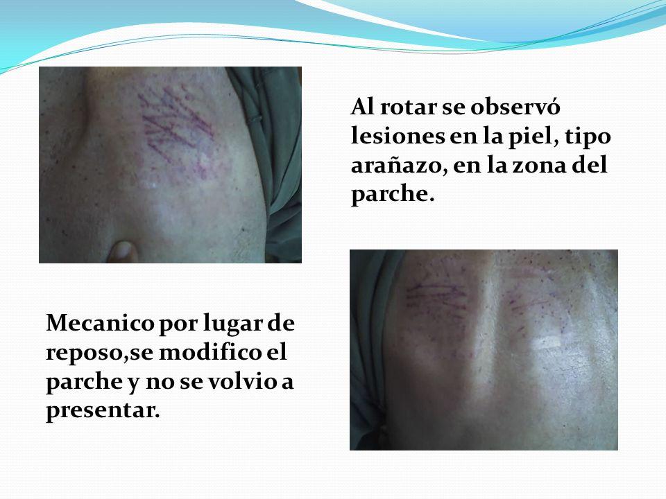 Al rotar se observó lesiones en la piel, tipo arañazo, en la zona del parche. Mecanico por lugar de reposo,se modifico el parche y no se volvio a pres