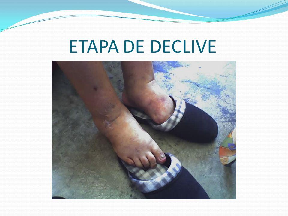 ETAPA DE DECLIVE