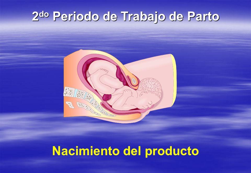 Nacimiento del producto 2 do Periodo de Trabajo de Parto