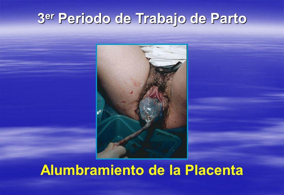 Alumbramiento de la Placenta 3 er Periodo de Trabajo de Parto