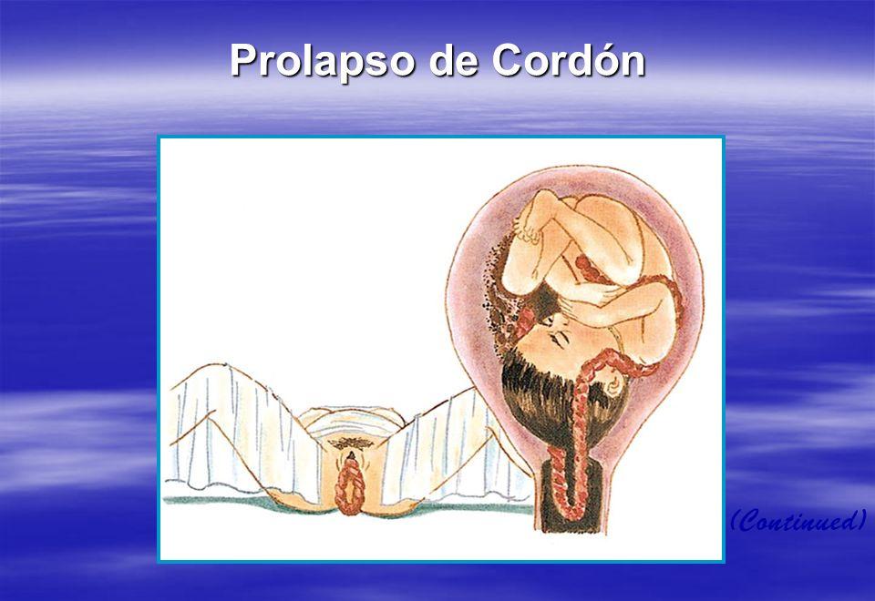 (Continued) Prolapso de Cordón