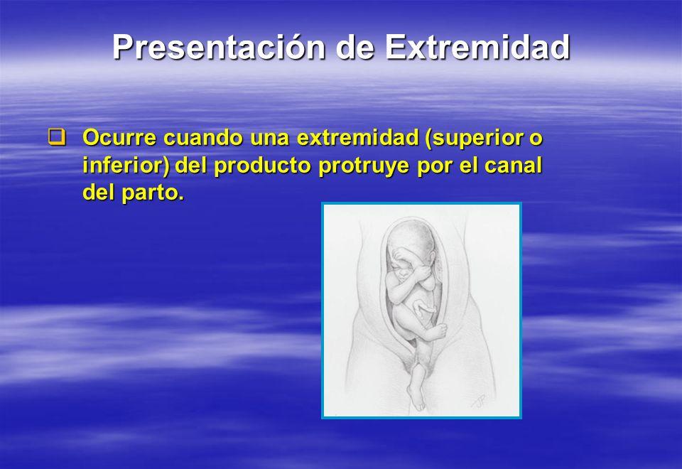 Ocurre cuando una extremidad (superior o inferior) del producto protruye por el canal del parto. Ocurre cuando una extremidad (superior o inferior) de