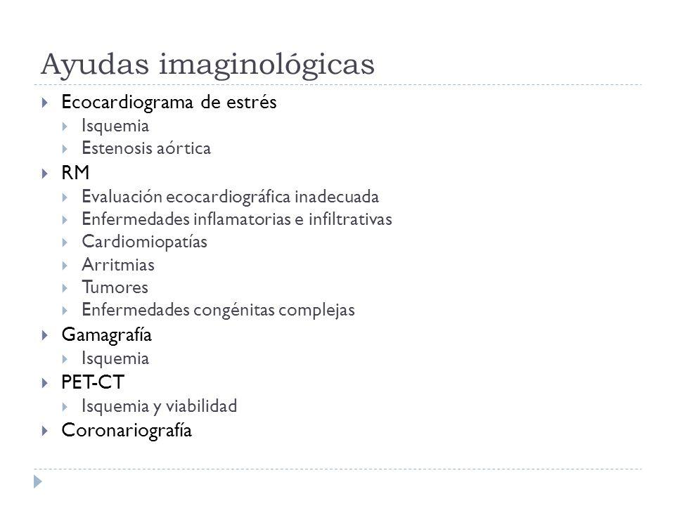 Ayudas imaginológicas Ecocardiograma de estrés Isquemia Estenosis aórtica RM Evaluación ecocardiográfica inadecuada Enfermedades inflamatorias e infil