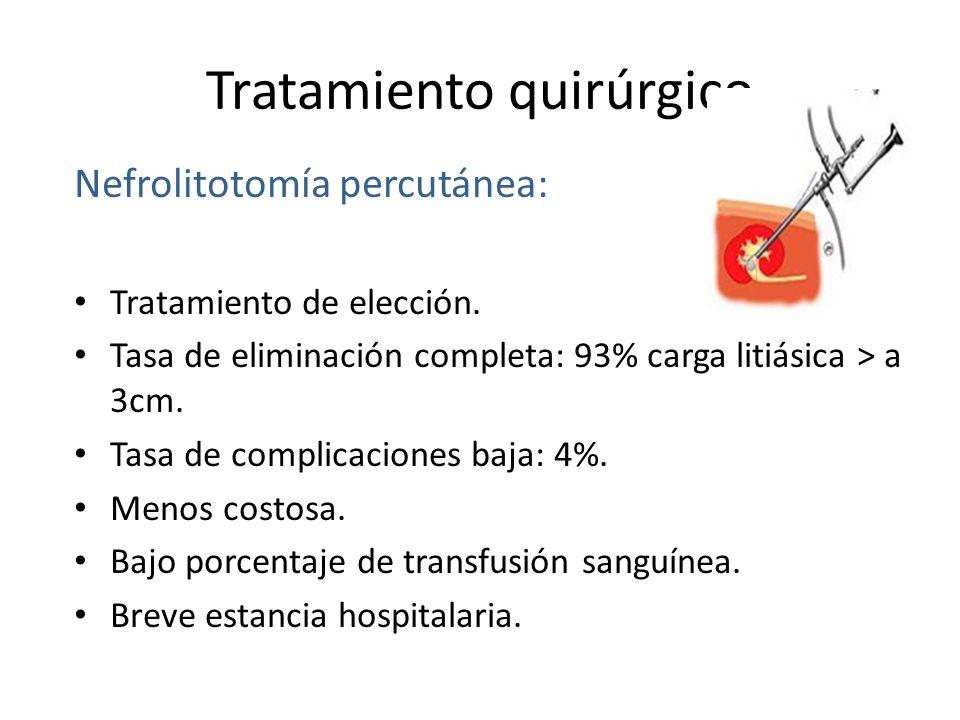 Tratamiento quirúrgico Nefrolitotomía percutánea: Tratamiento de elección.