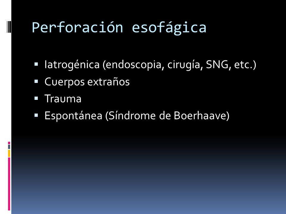 Perforación esofágica Iatrogénica (endoscopia, cirugía, SNG, etc.) Cuerpos extraños Trauma Espontánea (Síndrome de Boerhaave)
