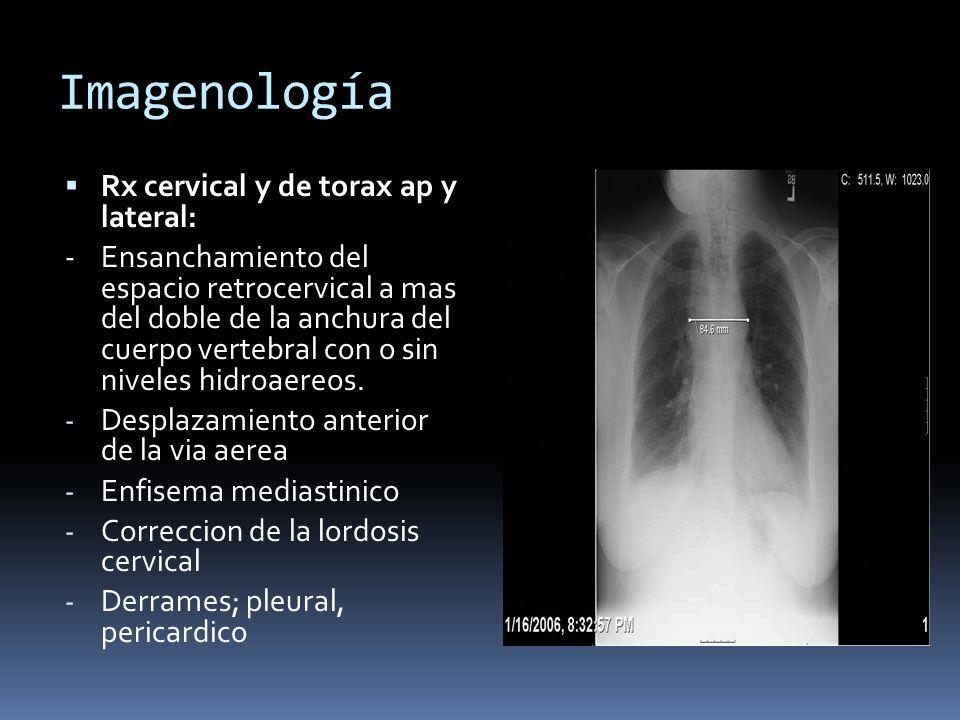 Imagenología Rx cervical y de torax ap y lateral: - Ensanchamiento del espacio retrocervical a mas del doble de la anchura del cuerpo vertebral con o sin niveles hidroaereos.
