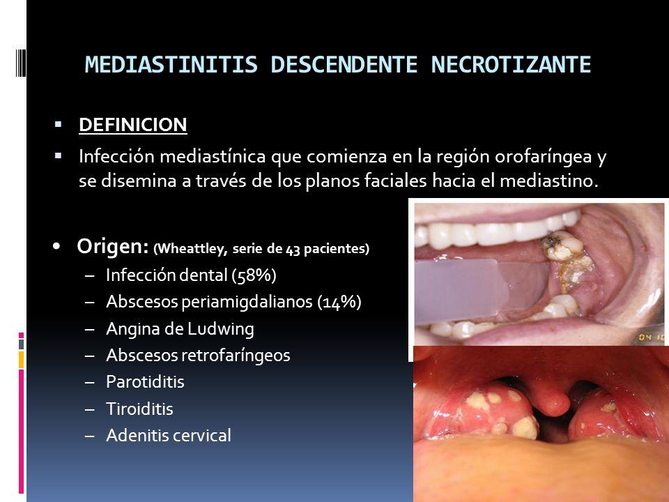 MEDIASTINITIS DESCENDENTE NECROTIZANTE DEFINICION Infección mediastínica que comienza en la región orofaríngea y se disemina a través de los planos faciales hacia el mediastino.