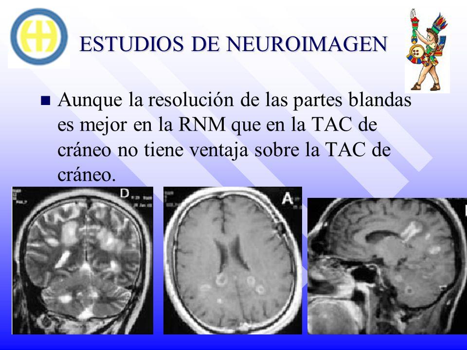 ESTUDIOS DE NEUROIMAGEN Aunque la resolución de las partes blandas es mejor en la RNM que en la TAC de cráneo no tiene ventaja sobre la TAC de cráneo.