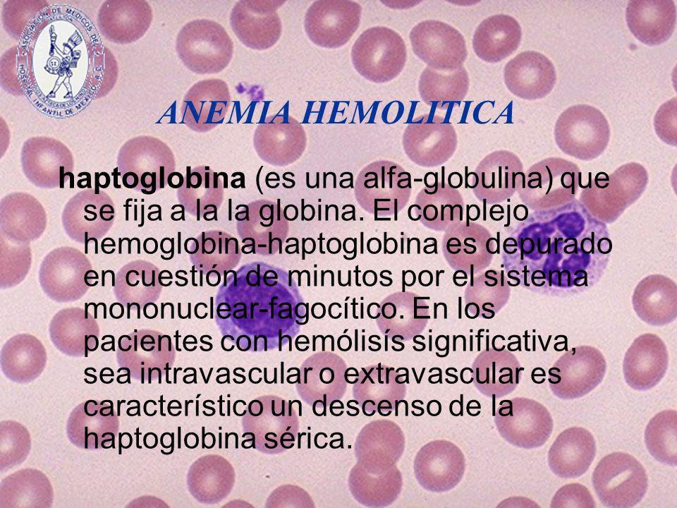 ANEMIA HEMOLITICA haptoglobina (es una alfa-globulina) que se fija a la la globina. El complejo hemoglobina-haptoglobina es depurado en cuestión de mi