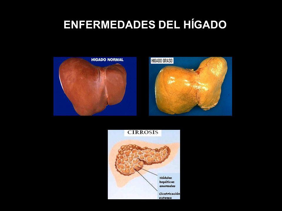 Te puedes contagiar con algunos virus de la hepatitis que son trasmitidos por contacto íntimo. El virus de hepatitis vive en la sangre, la saliva y el