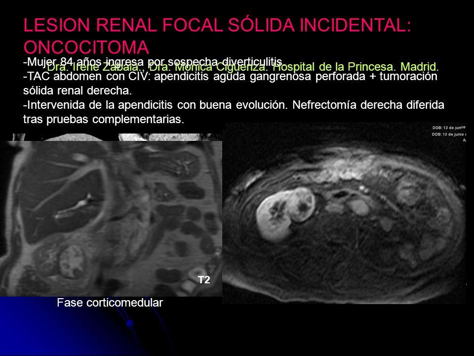 LESION RENAL FOCAL SÓLIDA INCIDENTAL: ONCOCITOMA Dra.