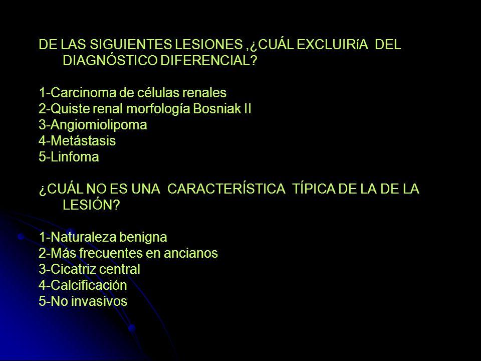 ONCOCITOMA -Lesión cortical renal sólida sin invasión o infiltración a la grasa perirrenal o al sistema colector o a los vasos, sin linfadenopatía regional o metástasis.