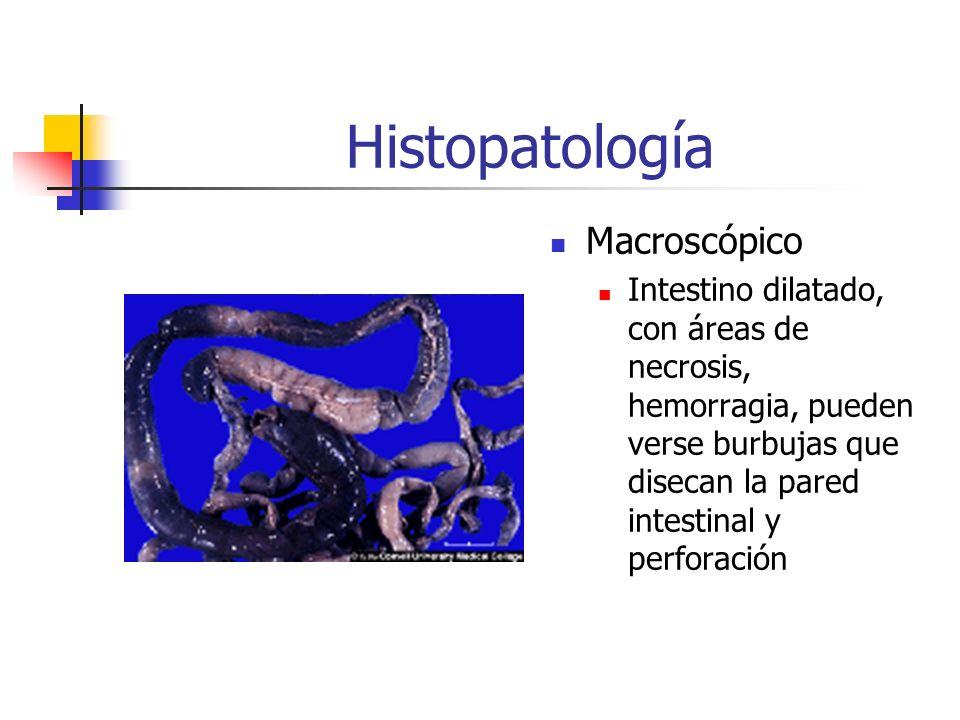 Histopatología Macroscópico Intestino dilatado, con áreas de necrosis, hemorragia, pueden verse burbujas que disecan la pared intestinal y perforación