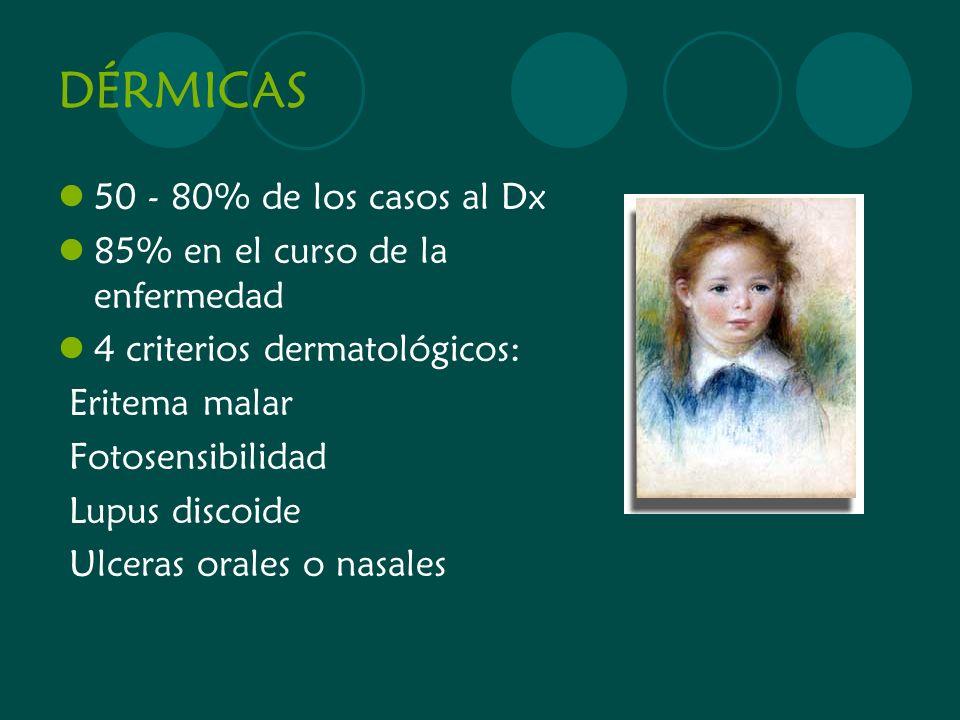 DÉRMICAS 50 - 80% de los casos al Dx 85% en el curso de la enfermedad 4 criterios dermatológicos: Eritema malar Fotosensibilidad Lupus discoide Ulcera