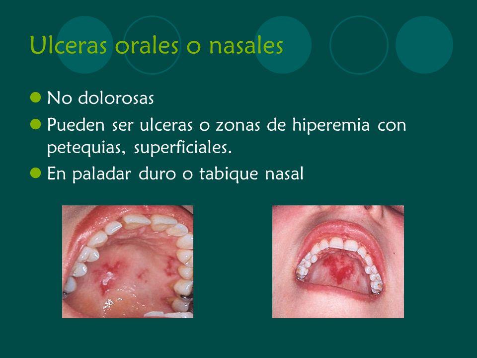 Ulceras orales o nasales No dolorosas Pueden ser ulceras o zonas de hiperemia con petequias, superficiales. En paladar duro o tabique nasal