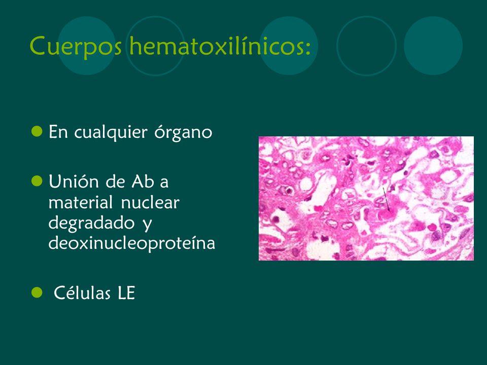 Cuerpos hematoxilínicos: En cualquier órgano Unión de Ab a material nuclear degradado y deoxinucleoproteína Células LE