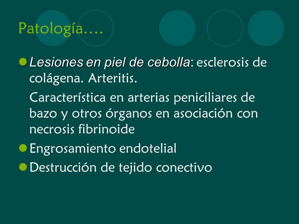 Patología…. Lesiones en piel de cebolla Lesiones en piel de cebolla: esclerosis de colágena. Arteritis. Característica en arterias peniciliares de baz