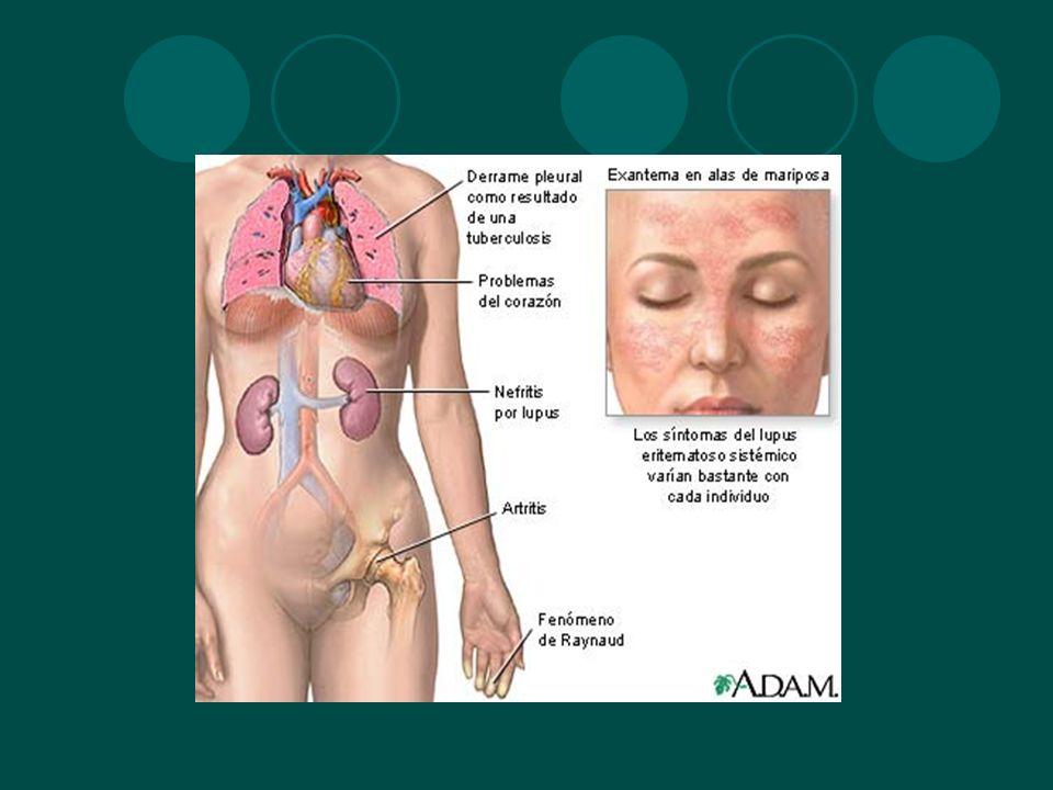 Hormonas: LES ocurre generalmente entre menarca y menopausia Deficiencia de andrógenos e incremento de estrógenos es característico Prolactina Actividad relacionada con uso de anticonceptivos orales Elevación de FSH, LH y prolactina Sx Klinefelter: hidroxilación 16alfa de estrona