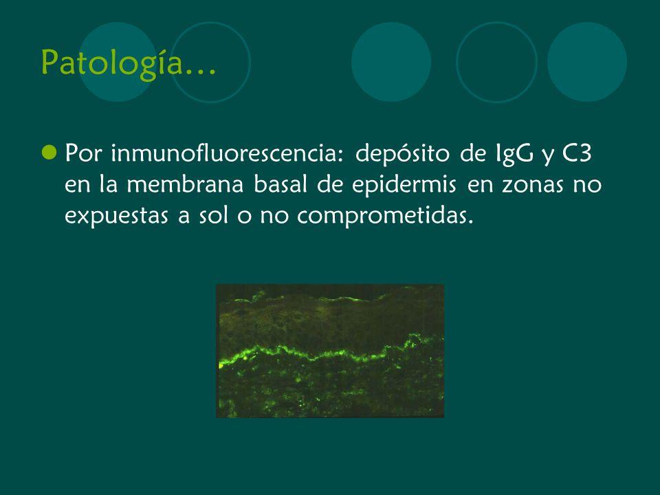 Patología… Por inmunofluorescencia: depósito de IgG y C3 en la membrana basal de epidermis en zonas no expuestas a sol o no comprometidas.
