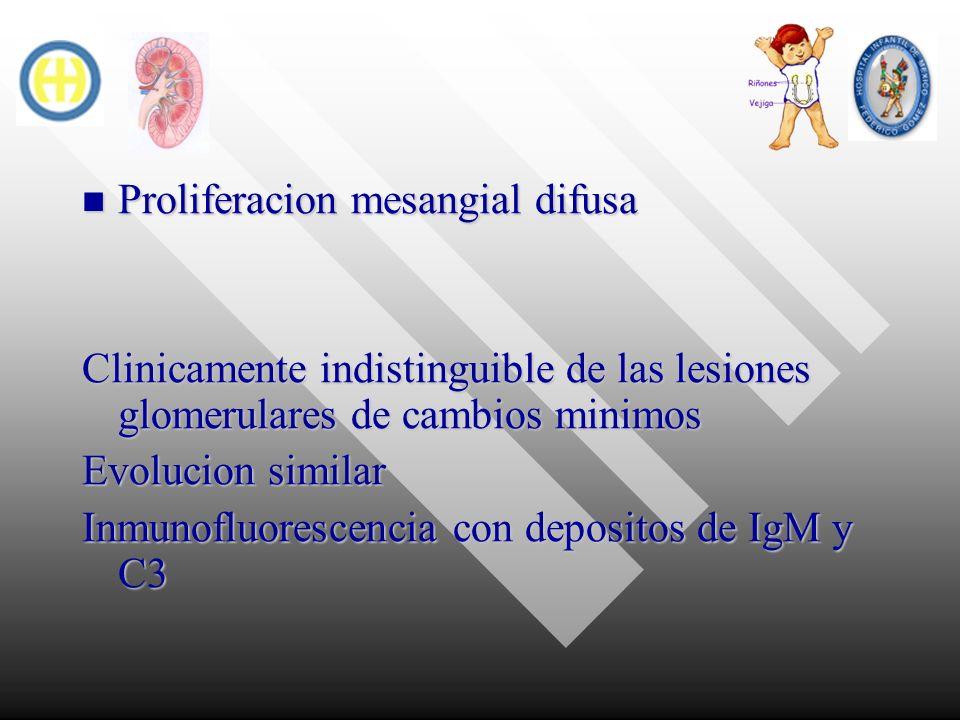 Proliferacion mesangial difusa Proliferacion mesangial difusa Clinicamente indistinguible de las lesiones glomerulares de cambios minimos Evolucion si