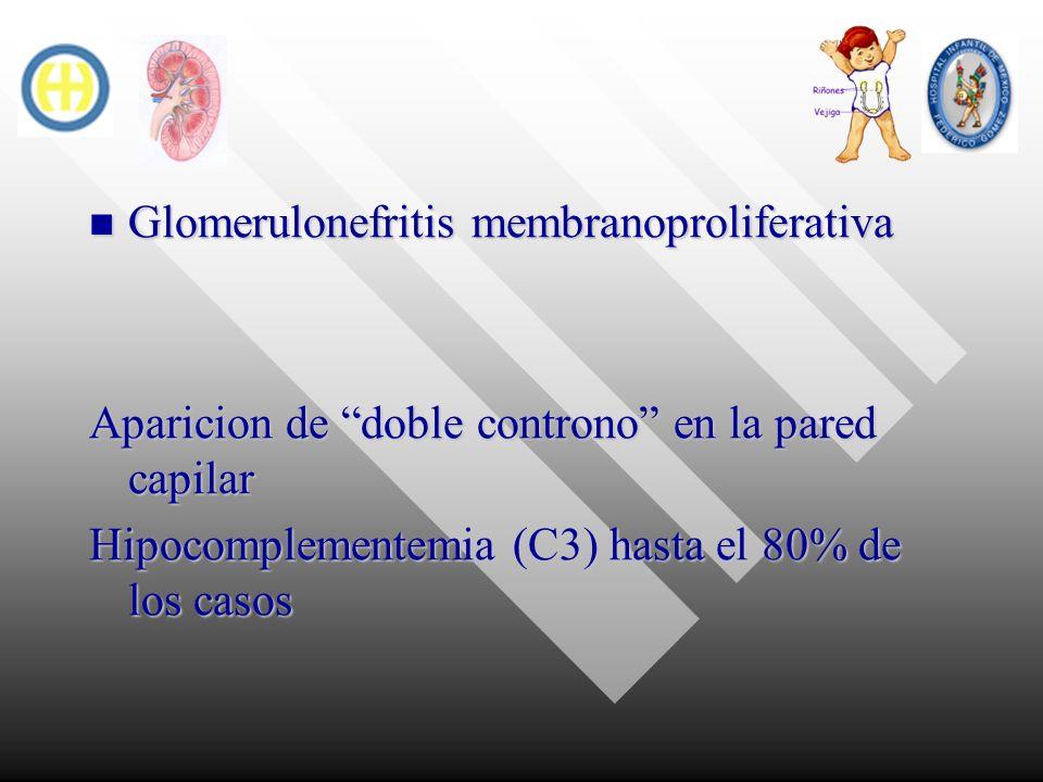 Glomerulonefritis membranoproliferativa Glomerulonefritis membranoproliferativa Aparicion de doble controno en la pared capilar Hipocomplementemia (C3