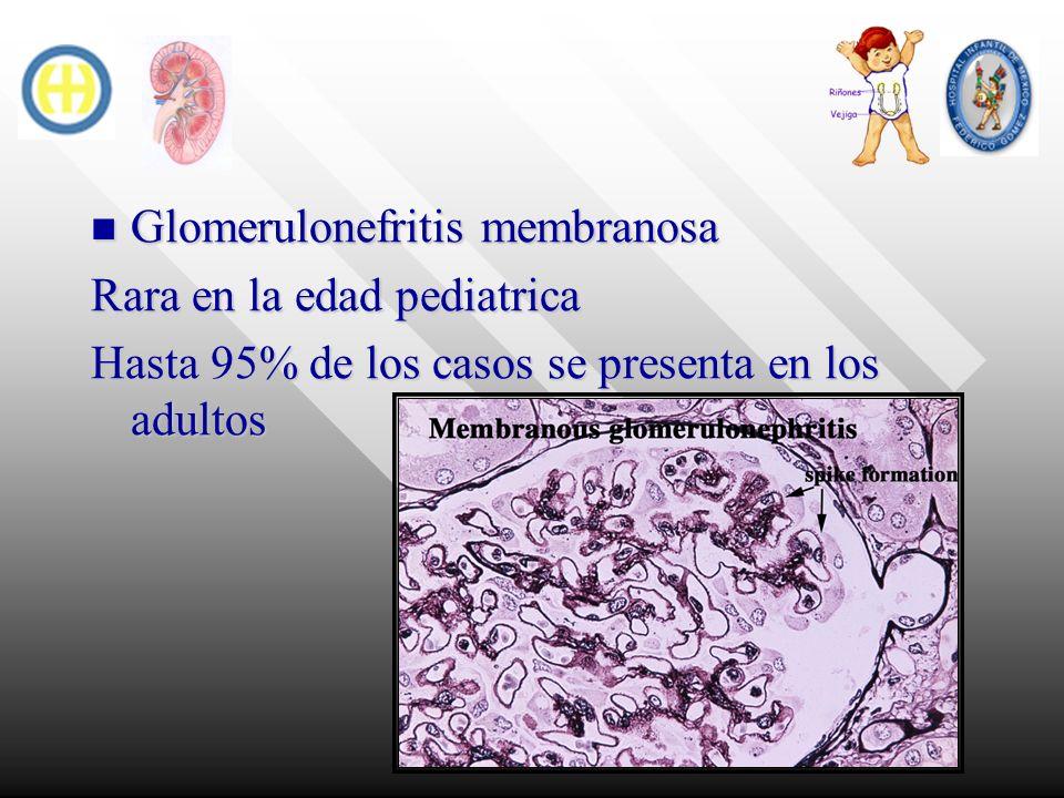 Glomerulonefritis membranosa Glomerulonefritis membranosa Rara en la edad pediatrica Hasta 95% de los casos se presenta en los adultos