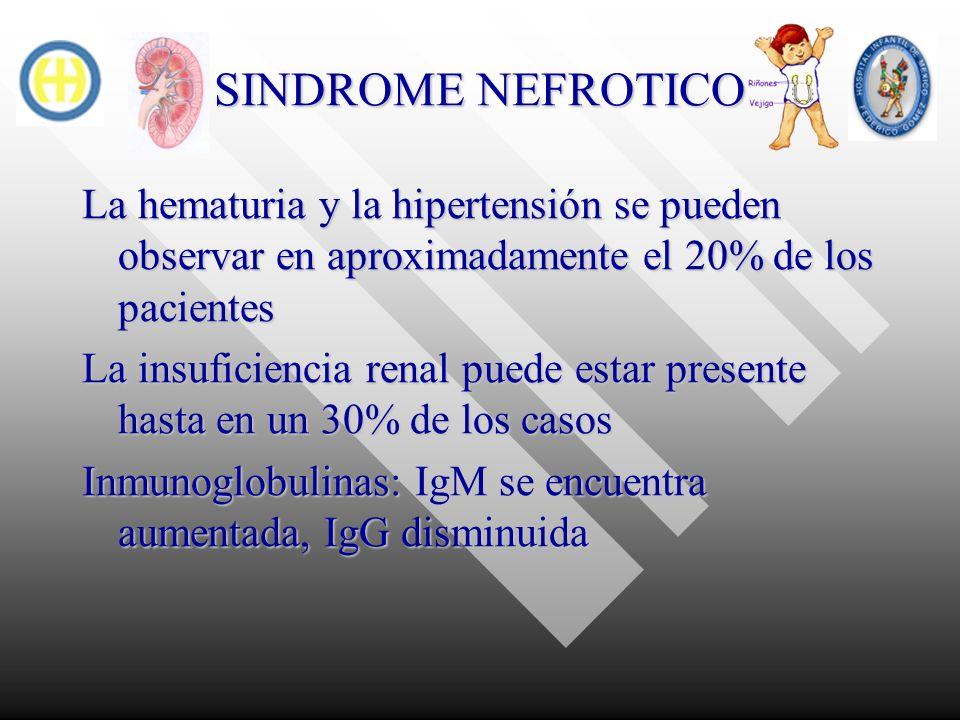 SINDROME NEFROTICO La hematuria y la hipertensión se pueden observar en aproximadamente el 20% de los pacientes La insuficiencia renal puede estar pre
