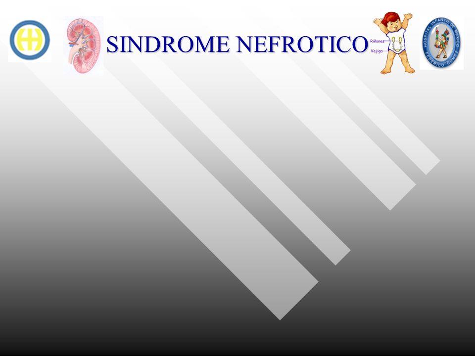 SINDROME NEFROTICO