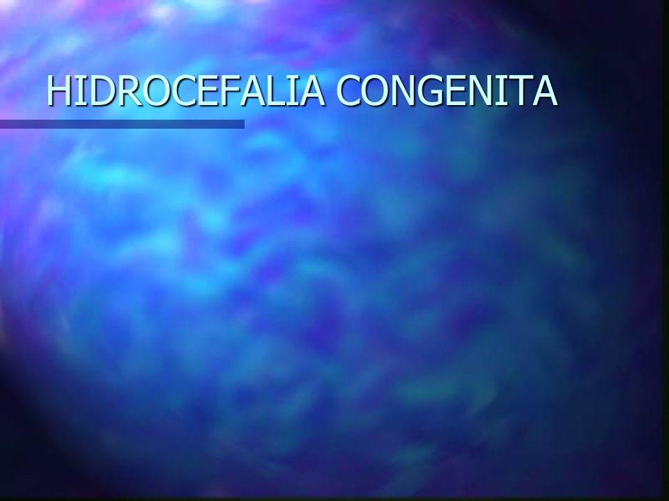 HIDROCEFALIA CONGENITA