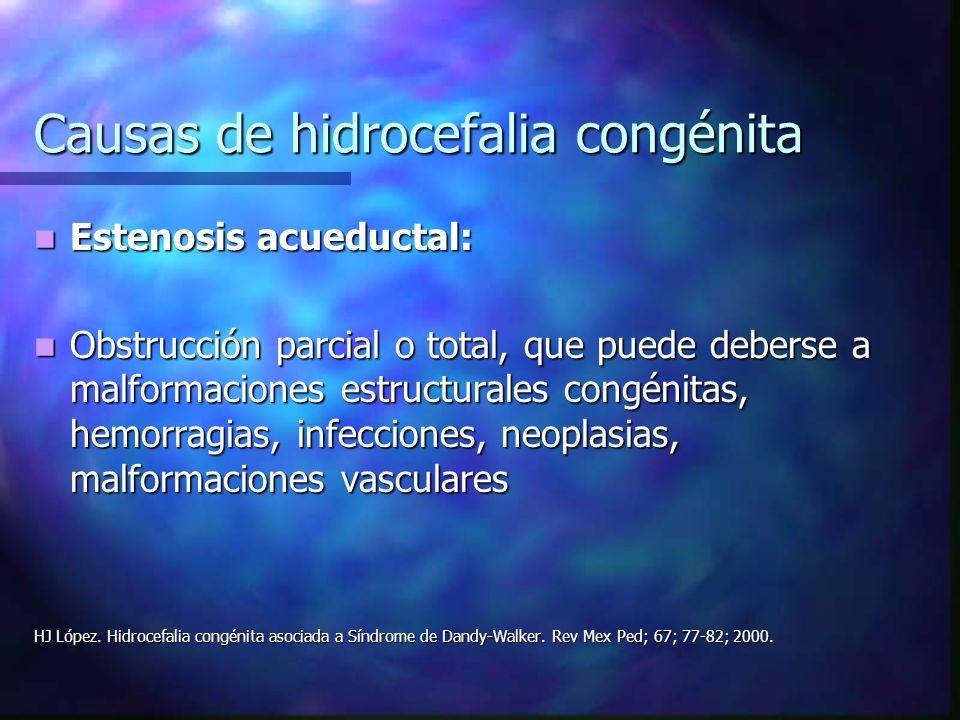 Causas de hidrocefalia congénita Estenosis acueductal: Estenosis acueductal: Obstrucción parcial o total, que puede deberse a malformaciones estructur