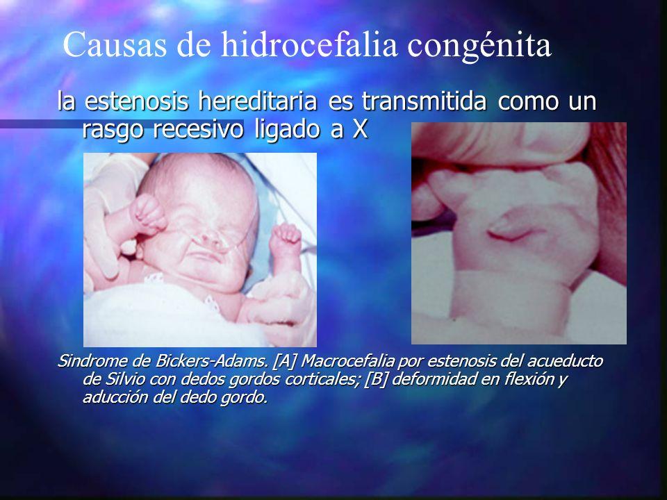 la estenosis hereditaria es transmitida como un rasgo recesivo ligado a X Sindrome de Bickers-Adams. [A] Macrocefalia por estenosis del acueducto de S