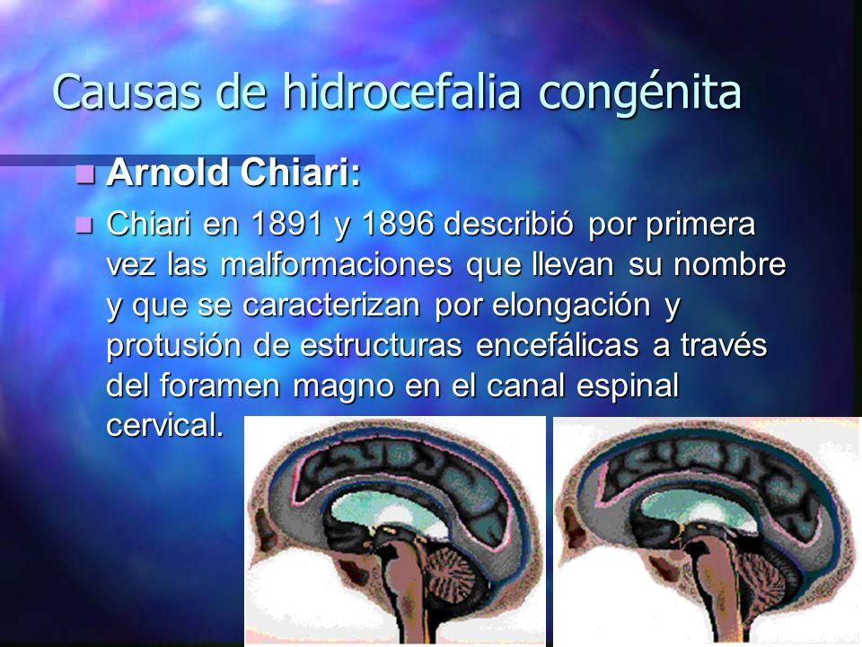 Arnold Chiari: Arnold Chiari: Chiari en 1891 y 1896 describió por primera vez las malformaciones que llevan su nombre y que se caracterizan por elonga