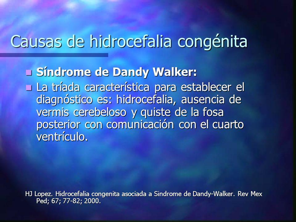 Causas de hidrocefalia congénita Síndrome de Dandy Walker: Síndrome de Dandy Walker: La tríada característica para establecer el diagnóstico es: hidro