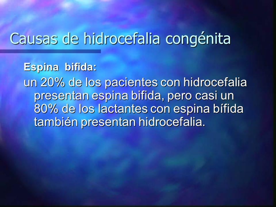 Causas de hidrocefalia congénita Espina bifida: un 20% de los pacientes con hidrocefalia presentan espina bifida, pero casi un 80% de los lactantes co